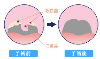 外科的治療(手術)